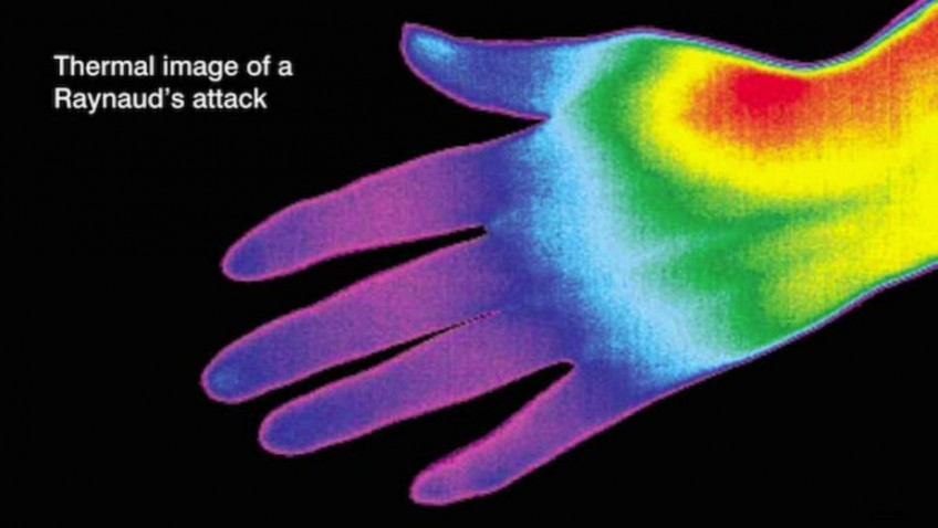 Love Your Gloves for Raynaud's Awareness Month!