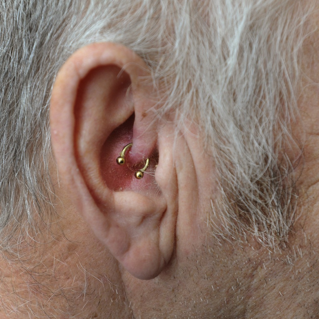 Colin Seaman, 70 who has been cured of migraines after having an ear ring. See Masons copy MNMIGRAINE: A pensioner who suffered 50 years of migraines claims to have been miraculously cured - by an EARRING. Colin Seaman, 70, had tried everything from strong drugs to clipping clothes pegs to his face to stop the excruciating pain caused by migraines. Father of two Mr Seaman began to suffer from migraines when he was 20, which would knock him for six. He had numerous treatments from doctors to try and take away the pain including injections around his eyes.
