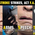 Could you spot the signs of stroke?