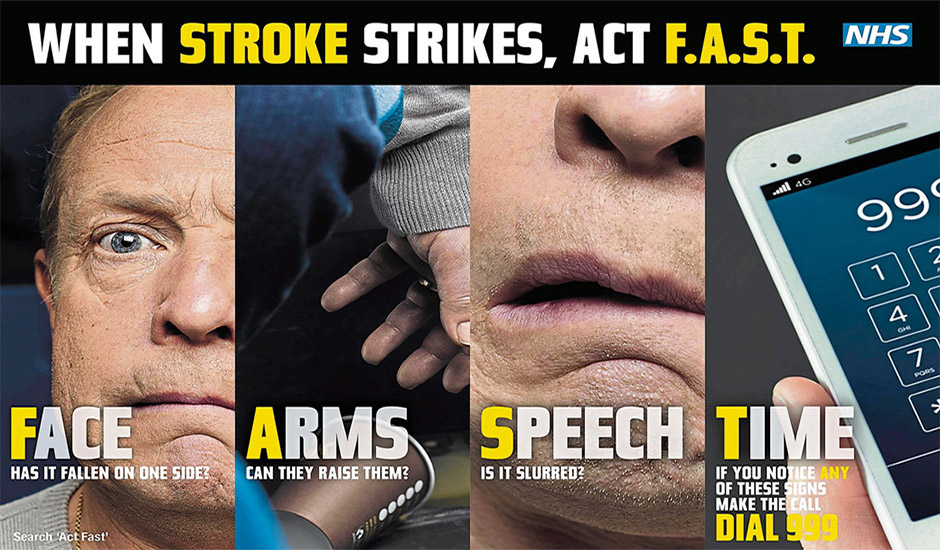 Act F.A.S.T - Signs of stroke