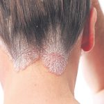 Psoriasis – what you need to know